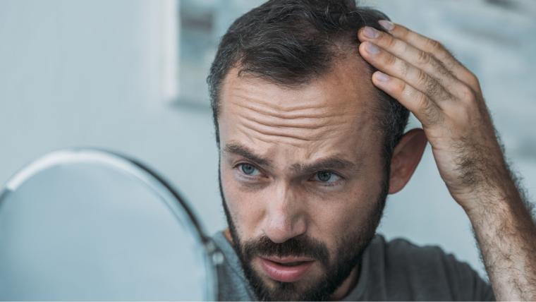 perdita-dei-capelli-essecore